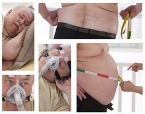 Избыточный вес и ожирение провоцируют храп и апноэ.