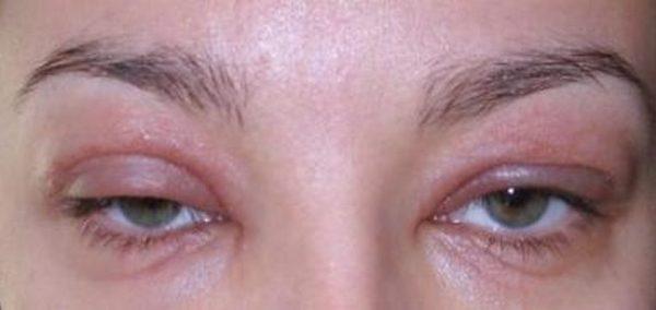 аллергия по утрам насморк