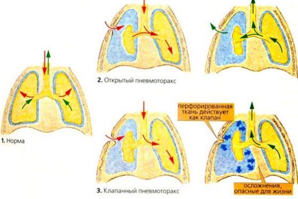 Нормальные легкие и пневмоторакс